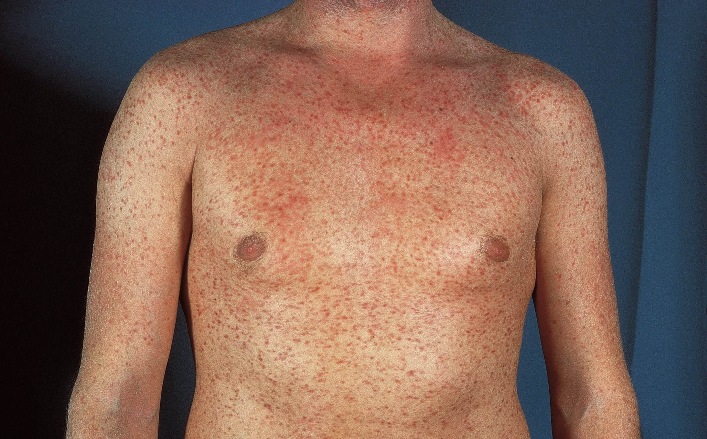 лейкемиды кожи фото сезон